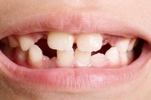 Agenezja zawiązków zębów - rodzaje i leczenie