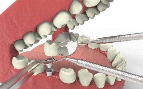 agenezja zębów
