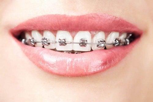 aparat na zębach agenezja