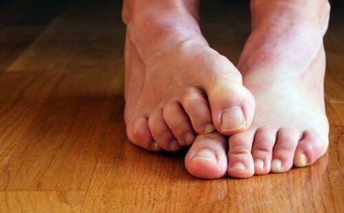 Bose stopy z grzybicą
