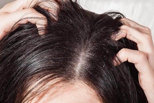 Przyczyny wypadania włosów wiążą się również ze stanem skóry głowy.
