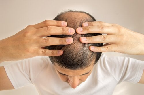 Miód zapobiega także wypadaniu włosów.