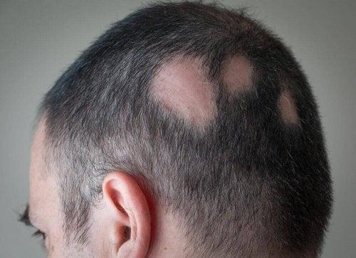 płaty łysienie głowa