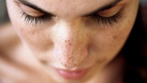 Przebarwienia i piegi na twarzy