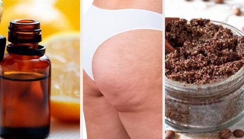 Cellulit: naturalne przepisy i sposoby na jego redukcję