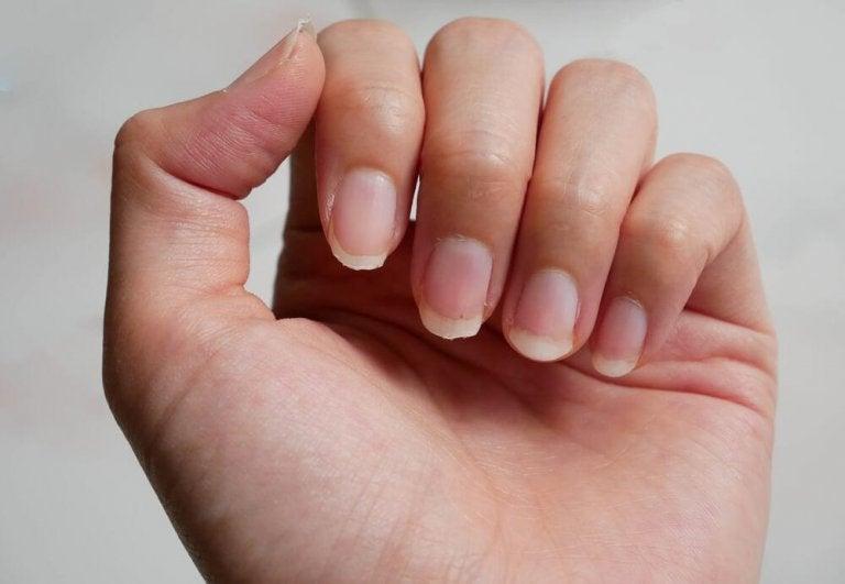Łamliwe paznokcie - 8 naturalnych remediów