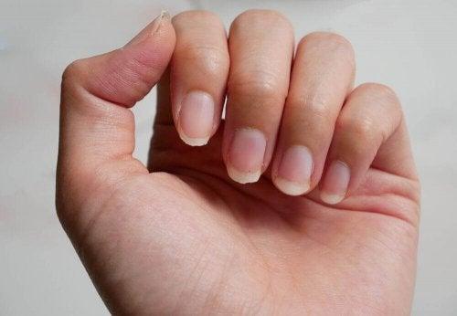 Łamliwe paznokcie – 8 naturalnych remediów