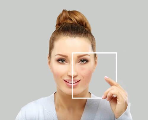 Przebarwienia na skórze często wynikają z nieprawidłowości w rozłożeniu melaniny.