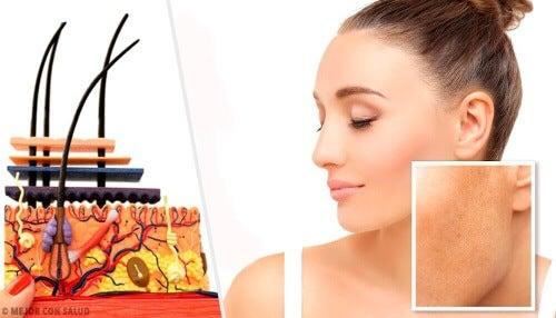 Przebarwienia na skórze – czym są, co je powoduje?