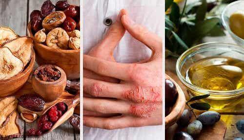 Wyprysk skórny: przyczyny, objawy, diagnoza i leczenie