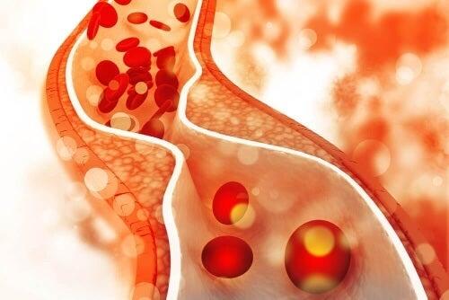 Wpływ cholesterolu widoczny jest zwłaszcza w tętnicach.