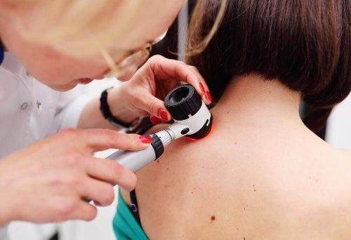 Sygnały ostrzegawcze związane z nowotworami skóry to przede wszystkim nietypowe zmaniona i pieprzyki.