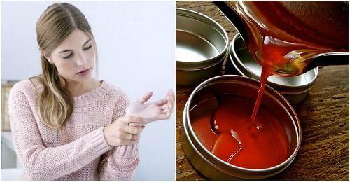 Ból stawów: przeciwzapalna maść na bazie pieprzu cayenne
