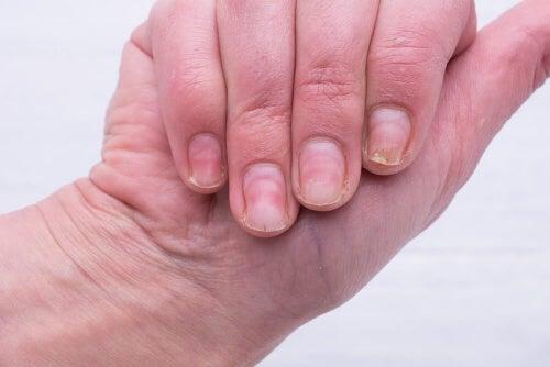 Żółte paznokcie - wypróbuj świetny domowy środek