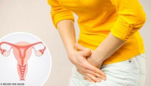 Bóle jajników – czy są objawem poważniejszego problemu?