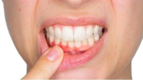 Ropień zębowy - co to jest i jak należy go leczyć?