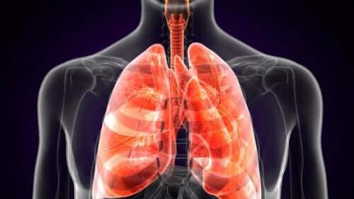 Dżuma płucna – czym jest i jak się objawia ta choroba?