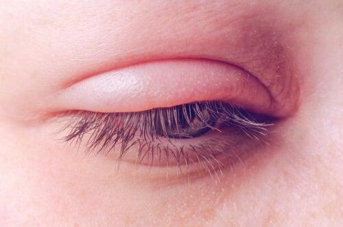 Zapalenie powiek: przyczyny, objawy i leczenie