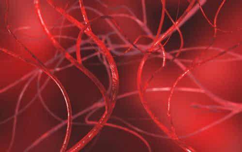 Zatkane tętnice – 4 naturalne metody lecznicze