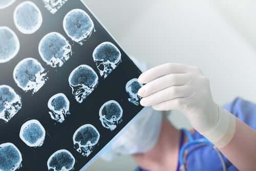 demencja zdjęcie neurologiczne