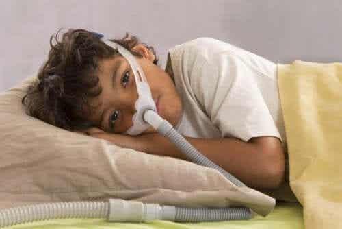 Obturacyjny bezdech senny u dzieci