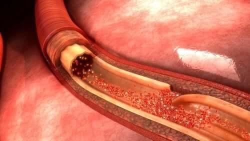 Rozwarstwienie aorty - jakie daje objawy?