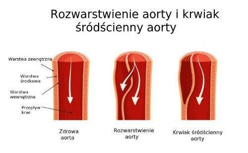 Rozwarstwienie aorty -schemat
