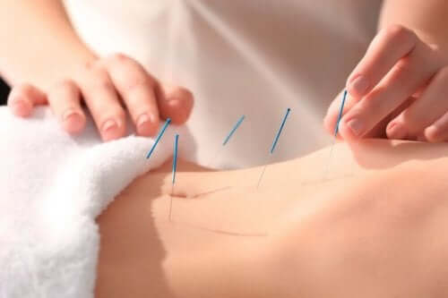 Akupunktura - wbite igły