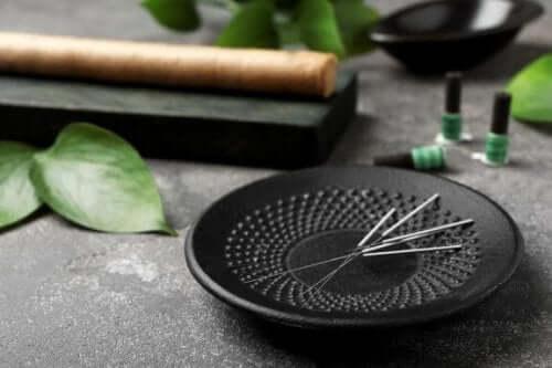 Akupunktura - 5 korzyści, o których warto wiedzieć