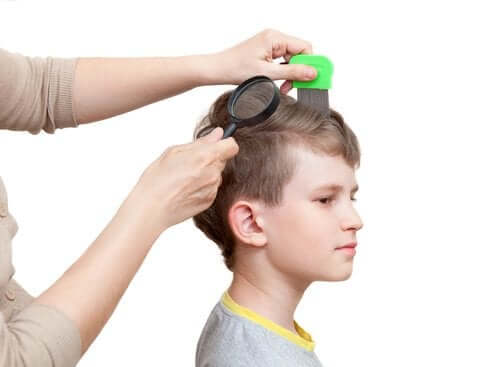Gnidy - jak je szybko usunąć z włosów