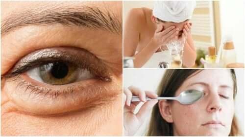 Obrzęki pod oczami – jak je zmniejszyć