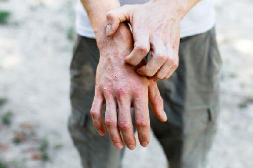 Wyprysk kontaktowy alergiczny – 6 sposobów
