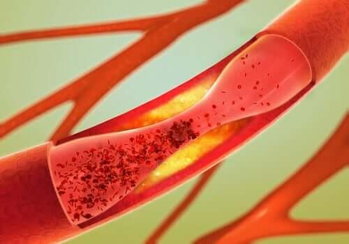 Otępienie naczyniowe - naczynia krwionośne