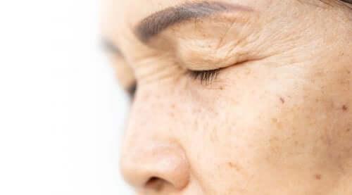 Jędrne powieki – 4 naturalne remedia