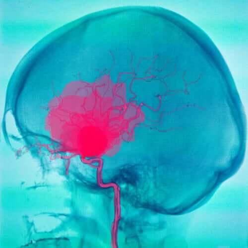 Wylew w mózgu