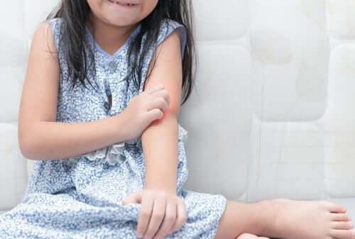Łuszczyca u dzieci - czy wiesz, jak sobie z nią radzić?
