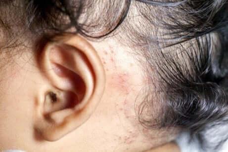 Łuszczyca za uchem