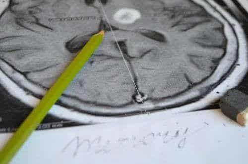 Amnezja - poznaj jej objawy i metody zapobiegania chorobie
