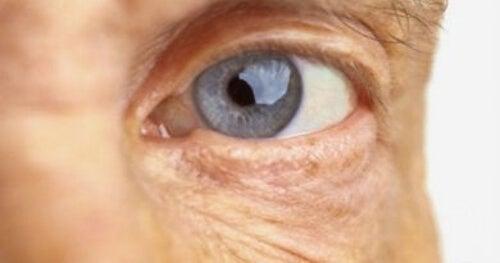 Oko starszej osoby