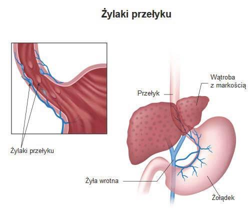 Żylaki przełyku - objawy, diagnoza i leczenie tej choroby