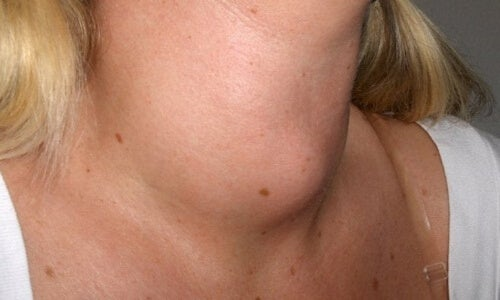Duży guzek na szyi u kobiety