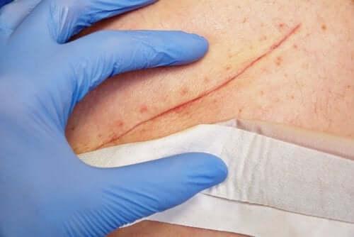 Leczenie ran - poznaj podstawowe techniki służące do tego celu