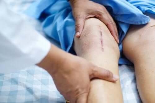 Chirurgia transplantacyjna kolana - rekonwalescencja