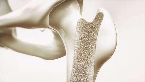 Osteoporoza, a kortykosteroidy