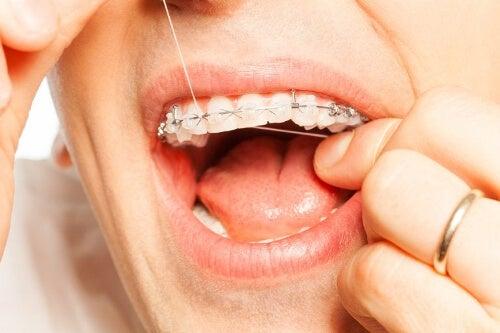 Higiena jamy ustnej z ortodoncją - nici