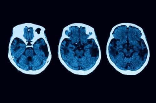 Zanik korowy tylny: poznaj metody diagnostyczne i sposoby leczenia