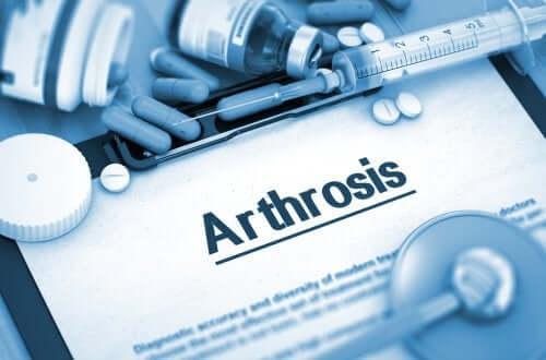 Artropatia zwyrodnieniowa - czym jest ta choroba?