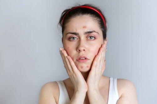 Kobieta z trądzikiem na twarzy
