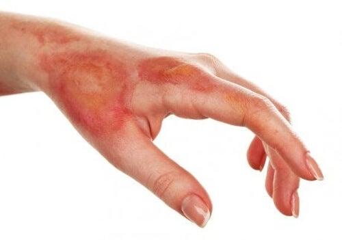 Poparzona dłoń