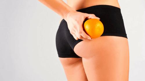 Cellulit zwany skórką pomarańczową